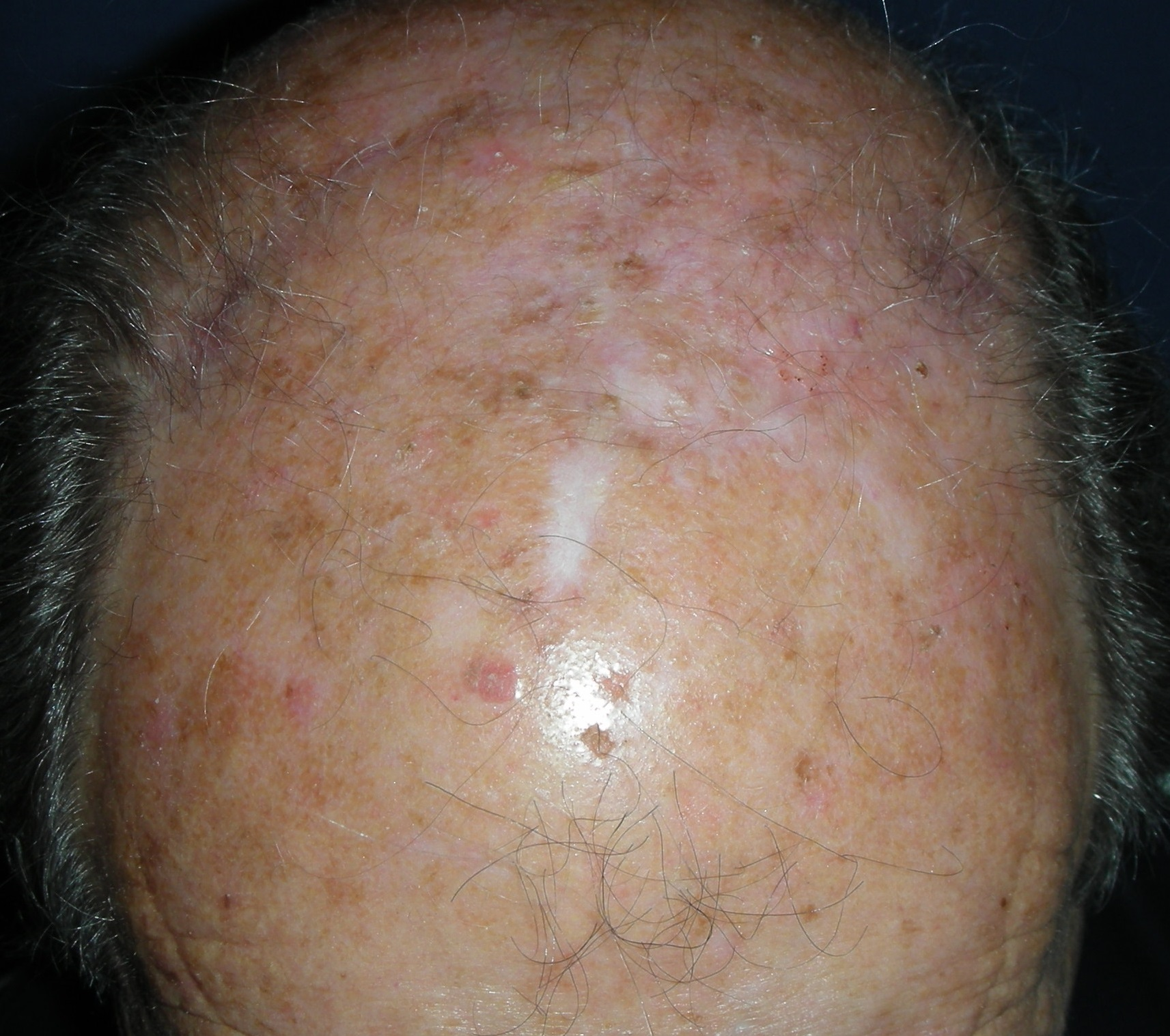 Разошлась кожа на голове