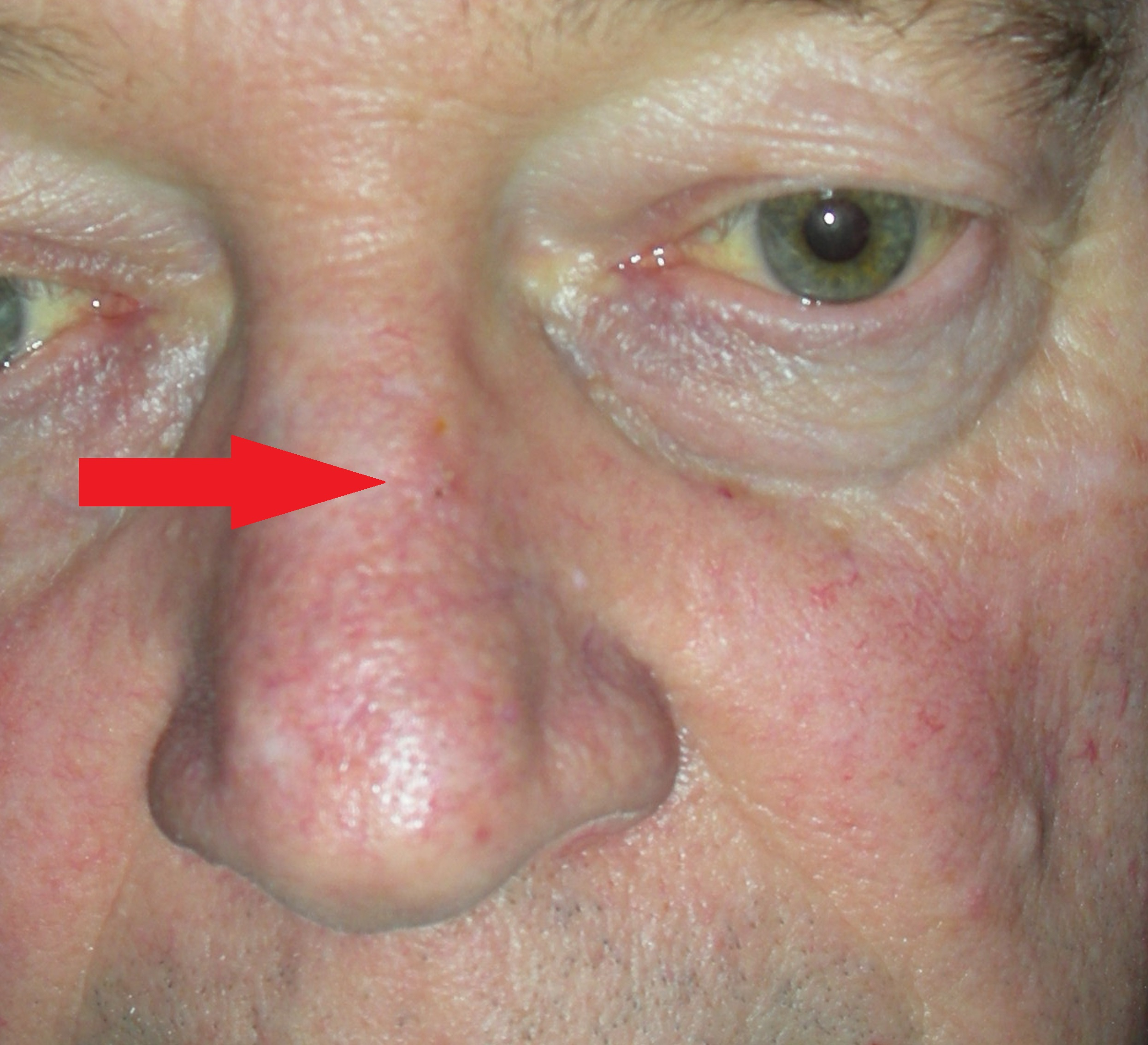 Skin Cancer Nose With Local Flap Repair Dr Damian Marucci Cosmetic Plastic Reconstructive Surgeon