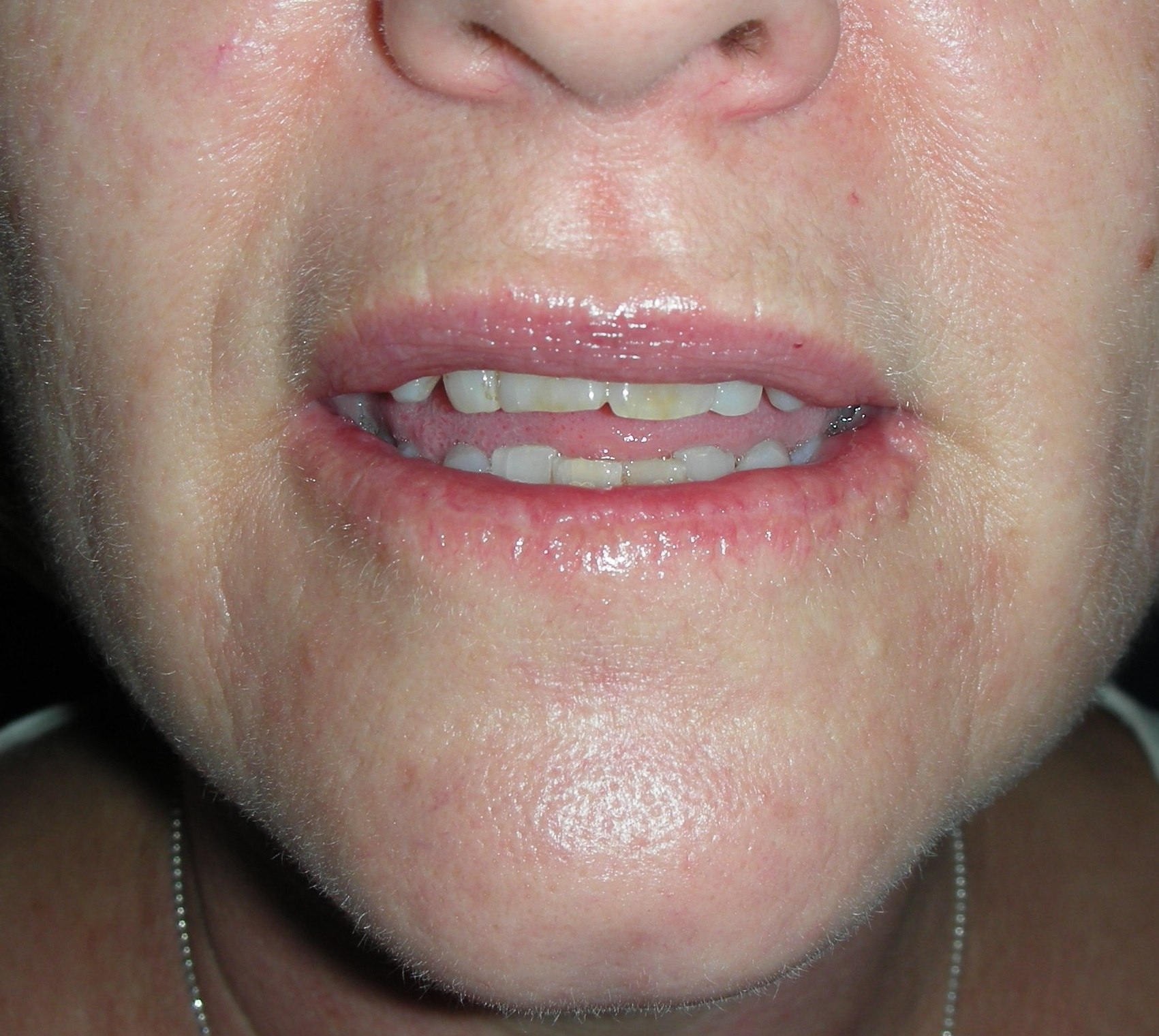 Skin Cancer Lower Lip Lower Vermillionectomy Dr Damian Marucci Cosmetic Plastic Reconstructive Surgeon