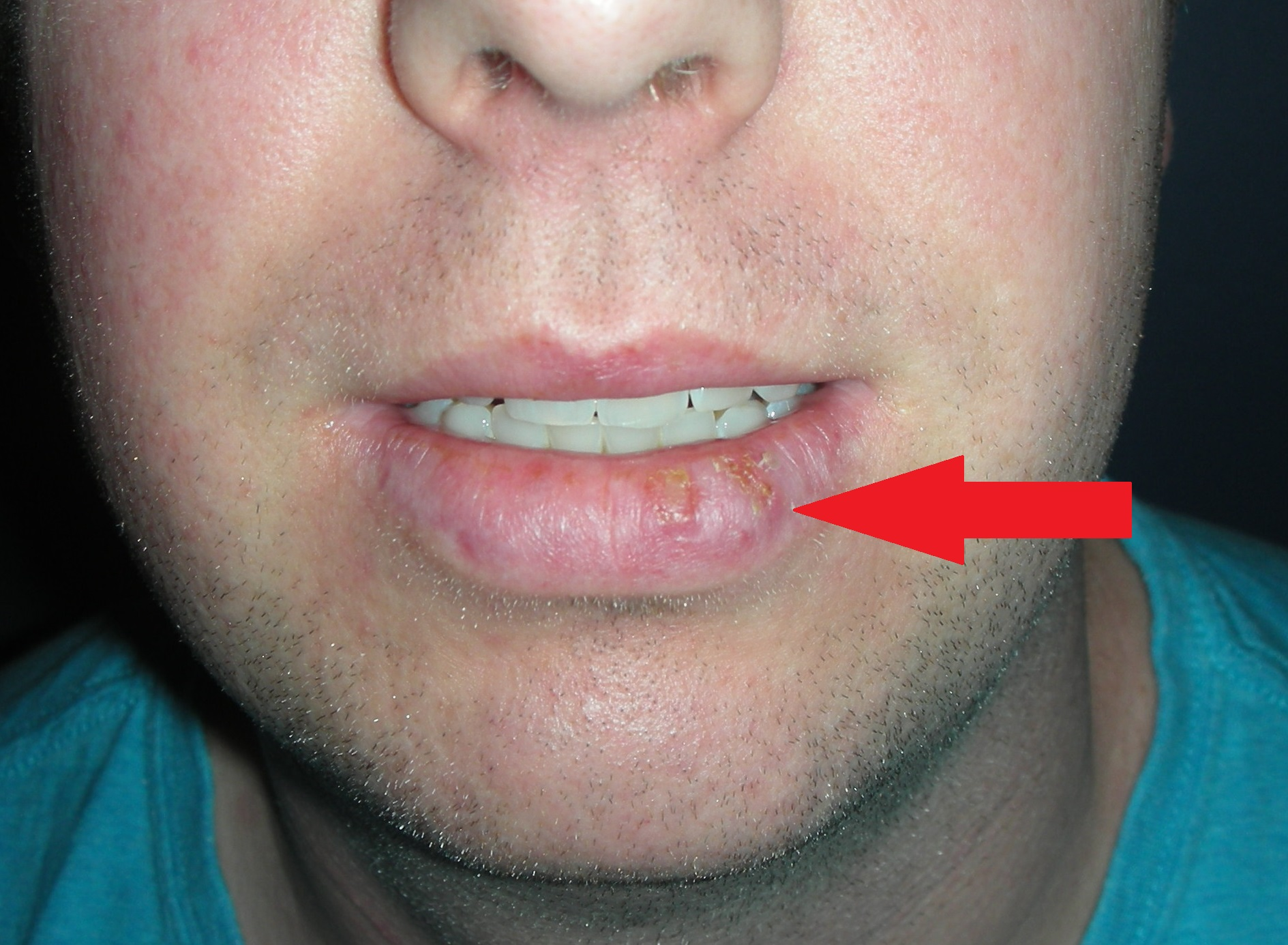 Pictures of Oral Cavity and Throat Disorders