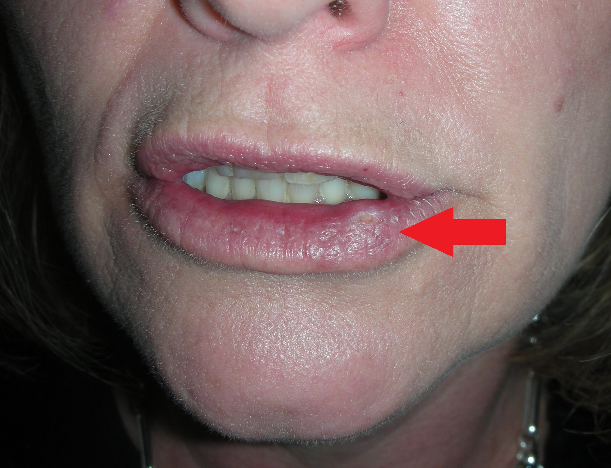 Oral Surgeons: Oral Cancer Pictures
