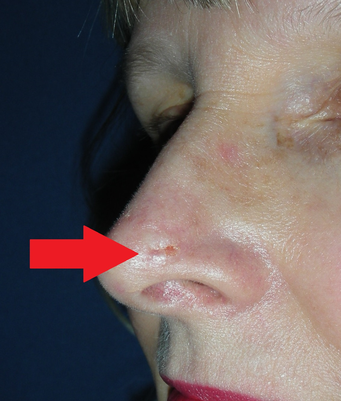 Skin Cancer Nose With Local Flap Before And After Dr Damian Marucci Cosmetic Plastic Reconstructive Surgeon